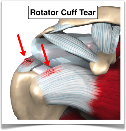 What is rotator cuff syndrome your indianapolis chiropractor